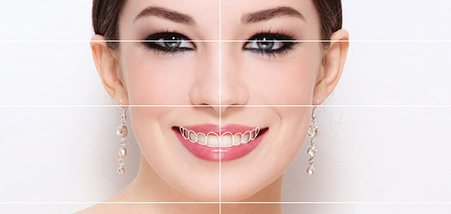Smile-Design-Beverly-hills
